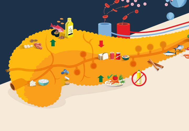 Cuidados básicos: Resistencia a la insulina   RevistaMoi