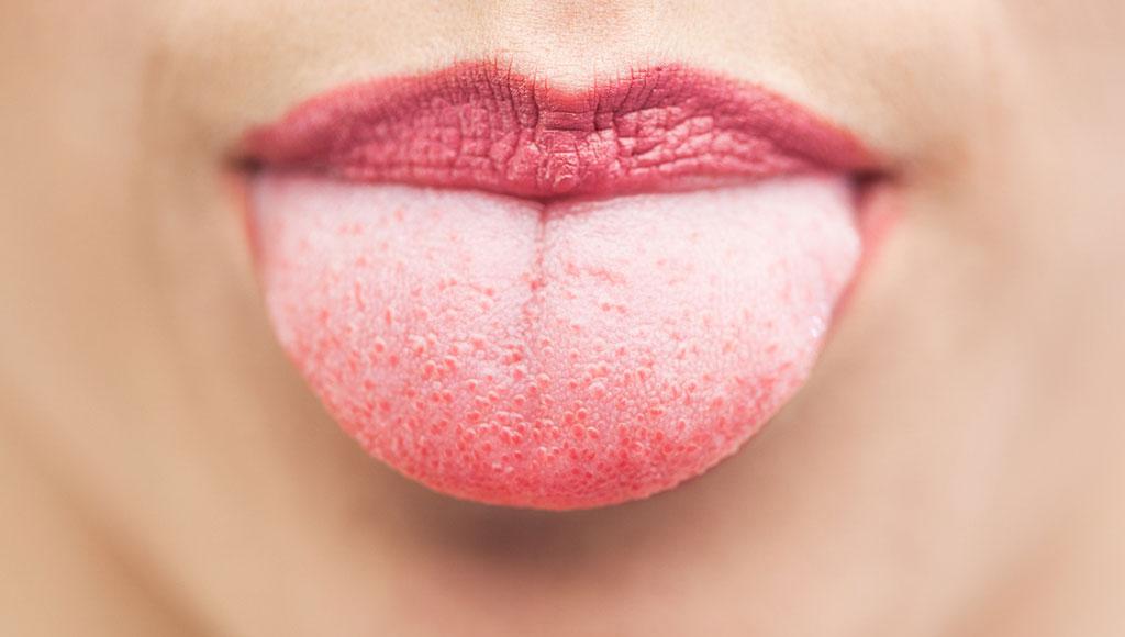 Beneficios de raspar la lengua | Moi